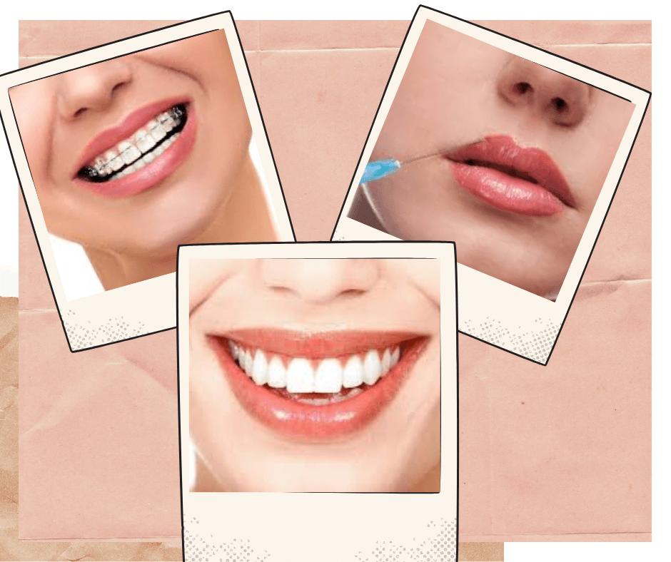 Fotografia Odontológica Uma Ferramenta Indispensável