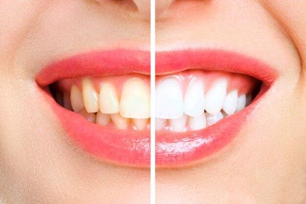 Clareamento-dental-entenda